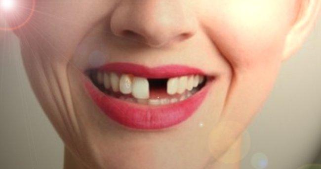 Rüyada Dişlerin Döküldüğünü Görmek