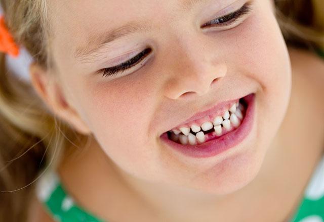 Rüyada Diş Kaybettiğini Görmek