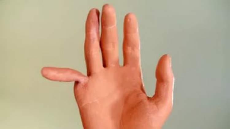 Rüyada Parmağınızın Kırıldığını Görmek